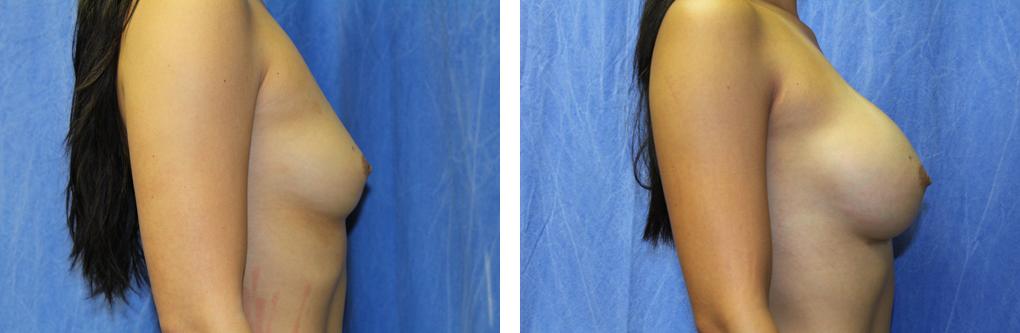 breast implants birmingham mi