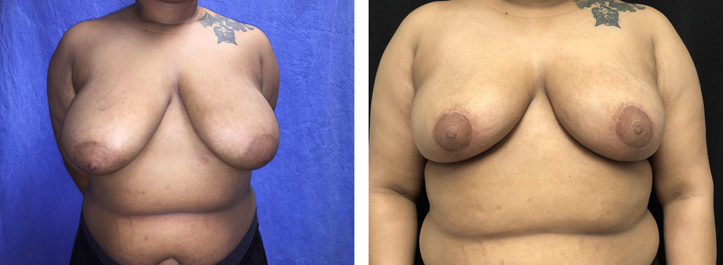 breast-lift-1