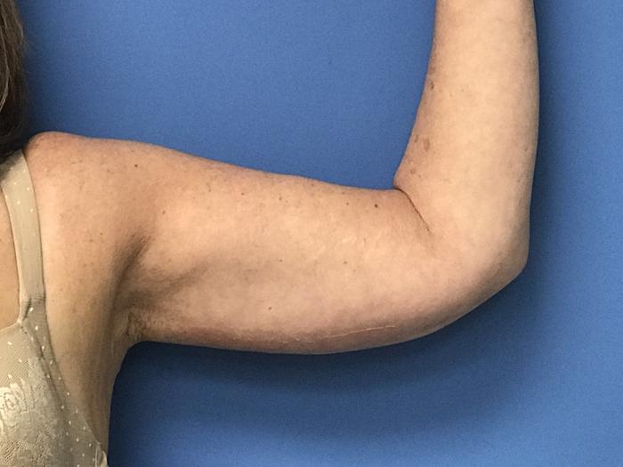 arm lift after