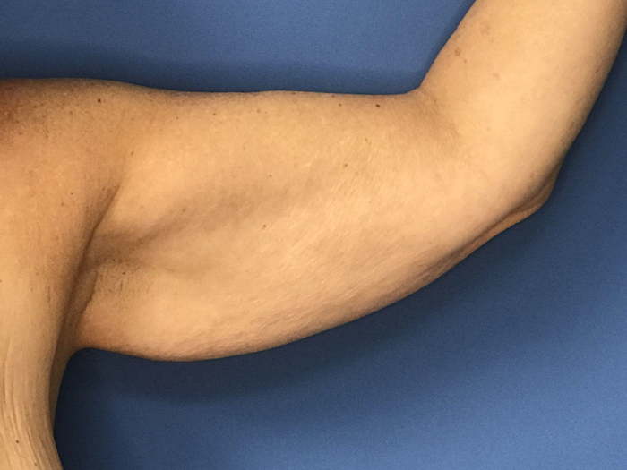 arm lift before